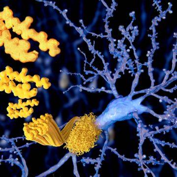 Malattia di Alzheimer: una sfida da vincere con l'aiuto della ricerca